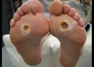 kaki-diabetik